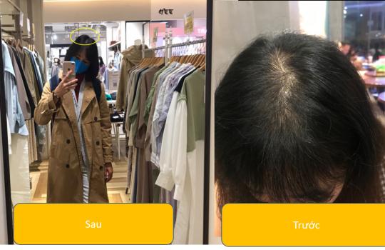 Kinh nghiệm chữa rụng tóc và kích thích mọc tóc